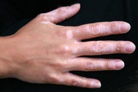 Autoimmunerkrankung Vitiligo