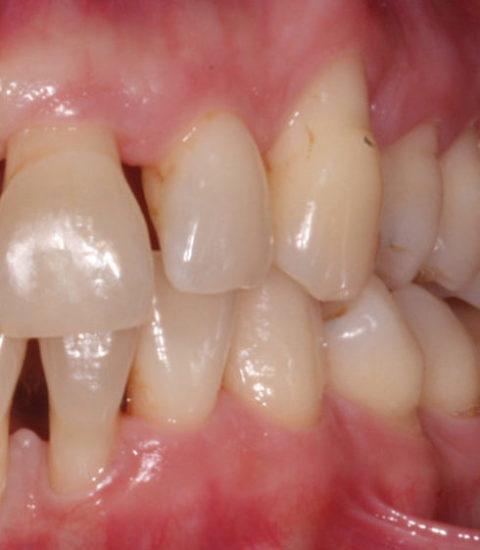 Parodontitis Nach Der Behandlung