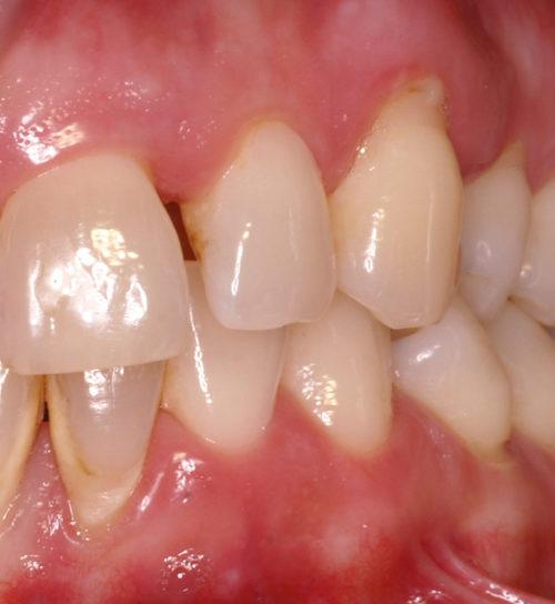 Parodontitis Vor Der Behandlung