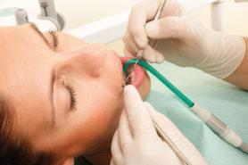 Junge Frau bei der Zahnreinigung