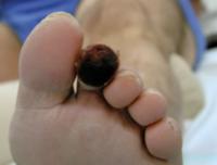 Abb. 1: Diabetiker mit Gangrän der zweiten Zehe links.