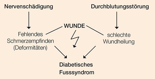 Diabetisches Fusssyndrom Erklaerung