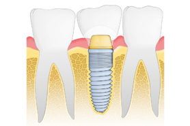 Illustration Dentalimplantate