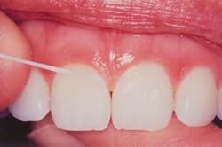Zahnzwischenraumreinigung mit Zahnseide