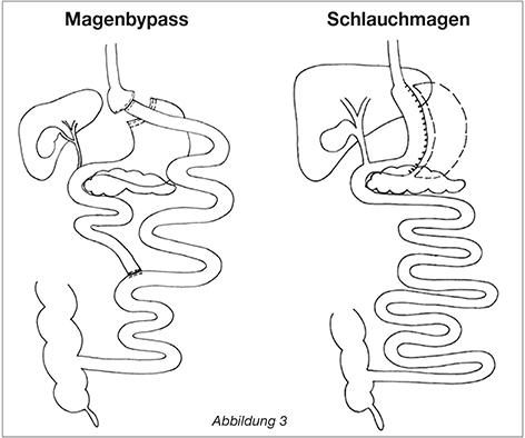 Zeichnung metabolische Chirurgie Magenbypass oder Schaluchmagen