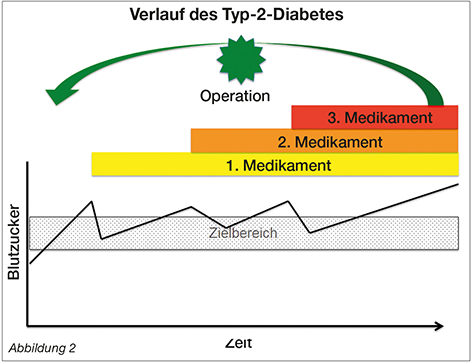 Tabelle Metabolische ChirurgieVerlauf des Typ-2-Diabetes