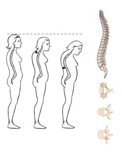 "Osteoporose ""Witwenbuckel"""