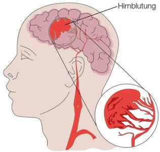 Abbildung Hirnblutung